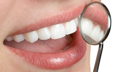 Dentistas para injertos de encías en Madrid