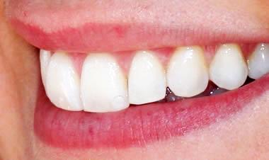 Blanqueamiento dental precio en Madrid