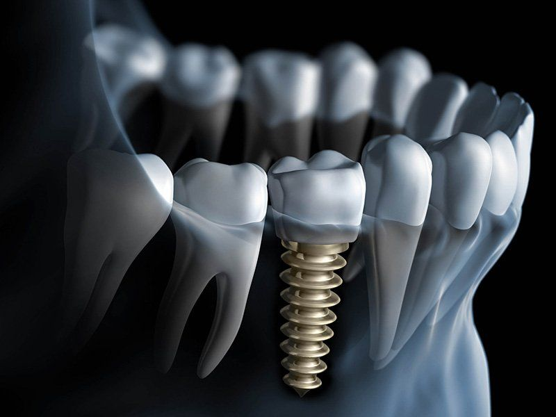 Especialistas en implantes dentales Madrid