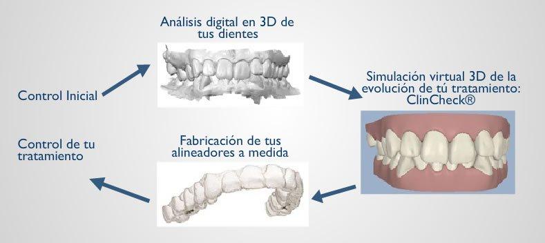 Ortodoncia invisible invisalign al mejor precio en Madrid