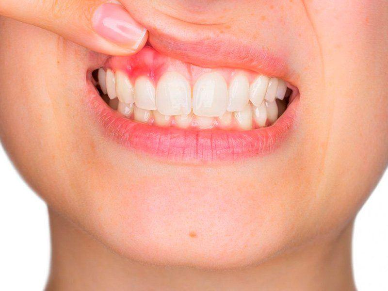 Dentista en Madrid para periodoncia