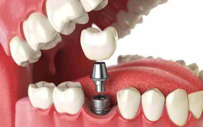 Como cuidar tus implantes dentales