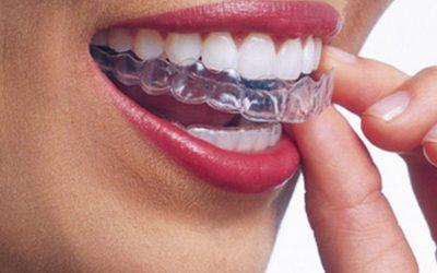 ¿Qué retenedor es mejor después de llevar ortodoncia?