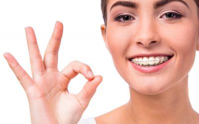 ¿Cuál es la duración de un tratamiento de ortodoncia?