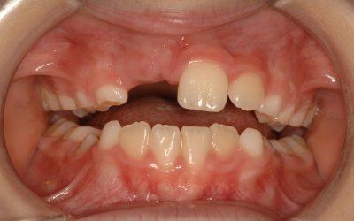 ¿A qué edad deben ponerse los brackets? ¿Se pueden poner brackets en dientes de leche?