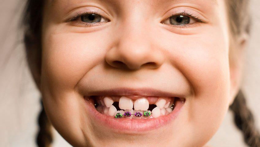 Preguntas frecuentes sobre ortodoncia infantil